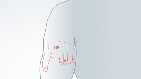 Hand-Repräsentation auf Armstumpf