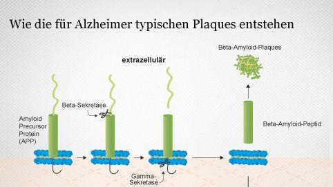 Entstehung von Alzheimer-Plaques