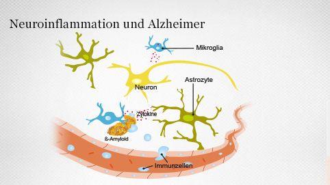 Blut-Hirn-Schranke und Neuroinflammation