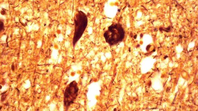 Bielschowsky-Färbung von Neurofibrillen