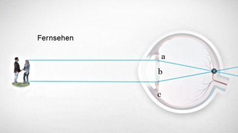 Linsen-Akkomodation des Auges für scharfes Sehen