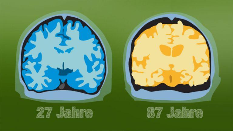 Entwicklung des Gehirns im Alter