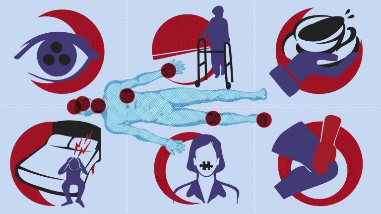 Multiple Sklerose - eine medizinische Herausforderung