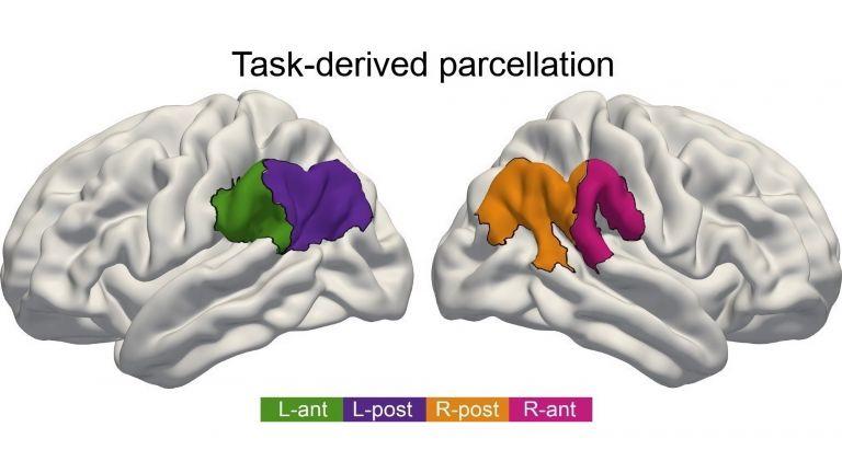 Für Sprachverständnis ist der vordere Teil des IPL in der linken Hirnhälfte von Bedeutung (grün), bei Aufmerksamkeit ist es der vordere Teil auf der rechten Hirnseite (pink). Geht es um soziale Kompetenzen, treten die hinteren IPL-Teile in beiden Hirnhälften gemeinsam in Aktion (orange, violett).