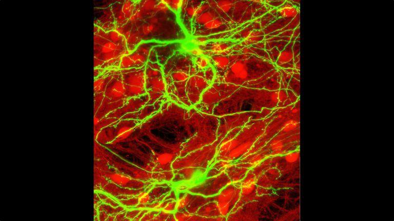 Neuronale Kultur mit 80 Prozent hemmenden (rot) and 20 Prozent erregenden (grün) Neuronen