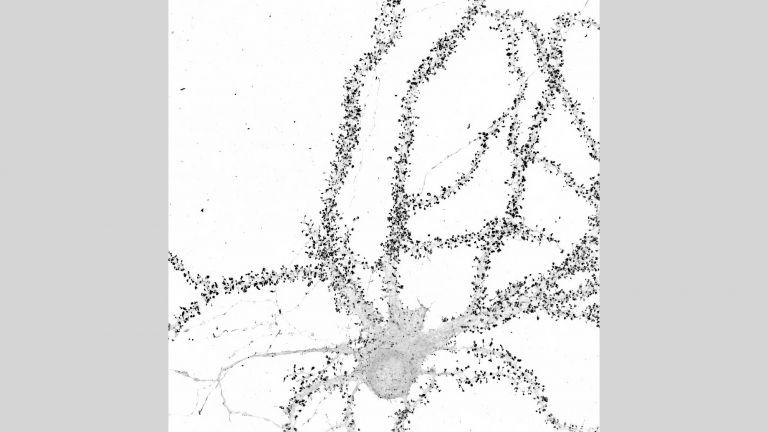 Verfolgung der Echtzeit-Dynamik der Protein-Synthese für endogene Proteine in lebenden Neuronen. Gezeigt: Superauflösendes Airyscan-Bild des endogenen synaptischen Proteins CAMK2a.