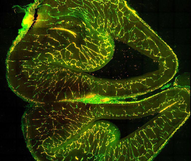 Hirnschnitt eines Mausmbryos, der die Entwicklung von vaskulären Endothelzellen (grün) und Zellen der Gefäßwand (rot) zeigt. Letztere können sich zusammenziehen und dadurch die Durchblutung der Gefäße beeinflussen.