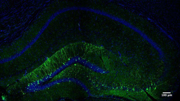 Die Abbildung zeigt den Teil des Hippocampus einer Maus, der beim Erlernen der neuen Aufgabe aktiviert wird. In grüner Farbe erscheinen die Neuronen, die die spezifische Erinnerung an diese Aufgabe codieren.